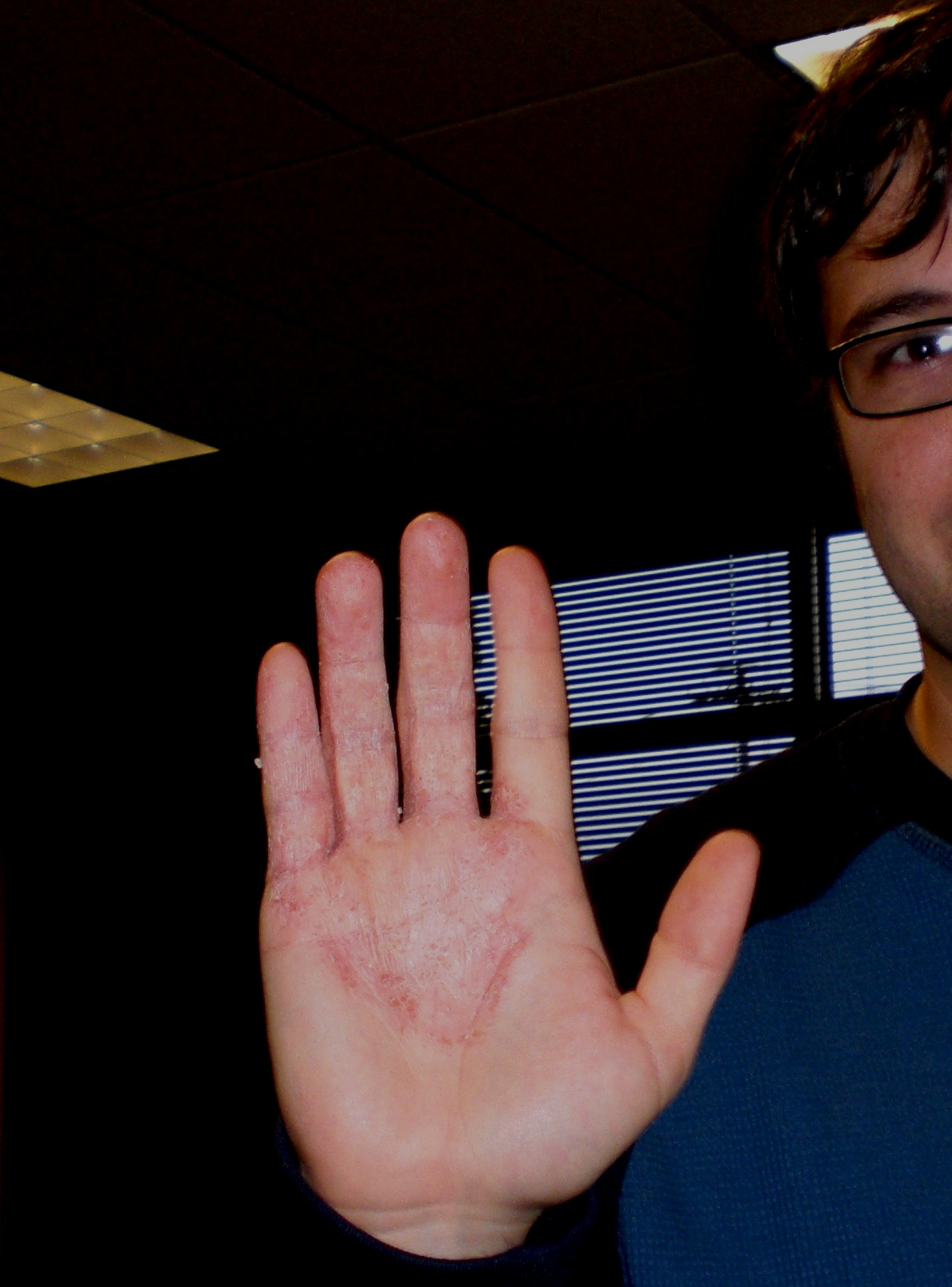 The Cure for Eczema and Hand Dyshidrosis: Replace Processed