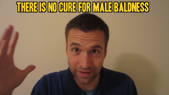 There is No Cure for Male Baldness or a Receding Hairline