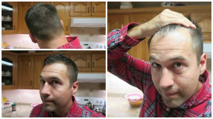 I Used Rosemary Essential Oil for Hair Loss for 6 Months and This is